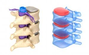vertebre lombalgia